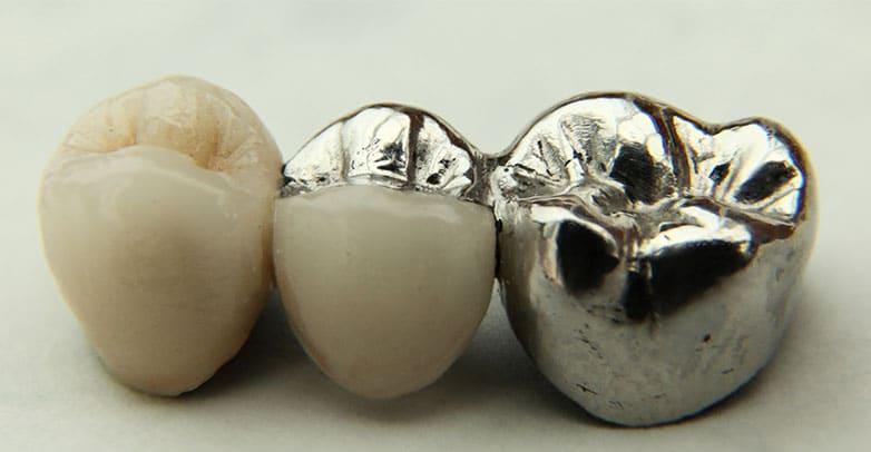 dental bridges papatoetoe