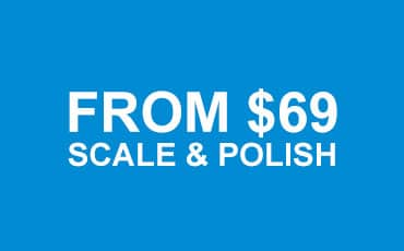 dental-scale-polish-price