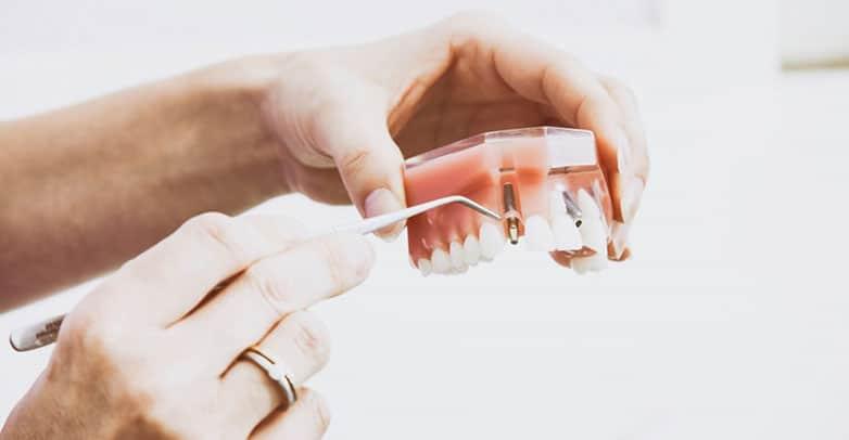 dentures papatoetoe dental