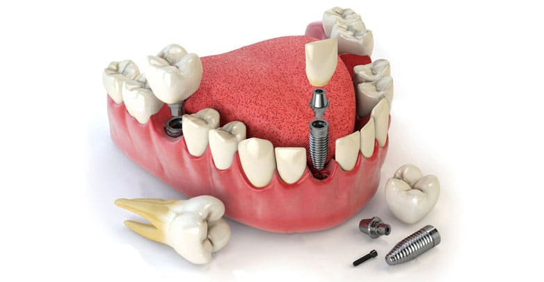 implants papatoetoe dental