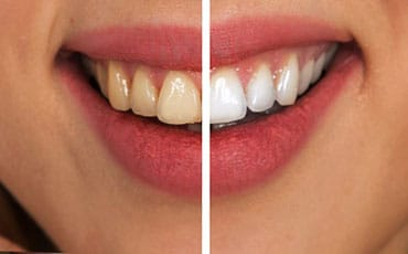 tooth whitening papatoetoe dental